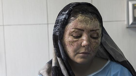 A victim of an acid attack